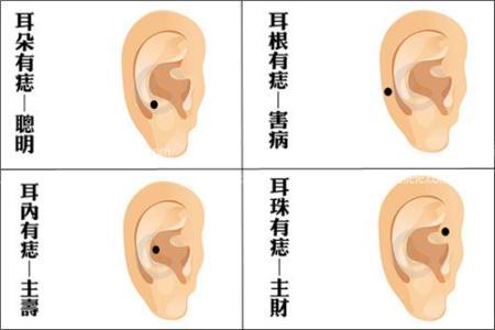 炎 外耳道